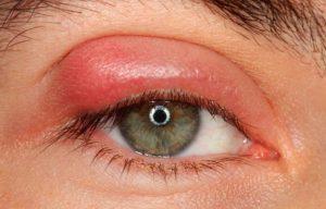 Как выглядит ячмень на глазу