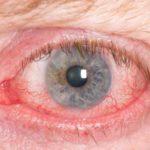 Аллергия на линзы и откуда она может появиться