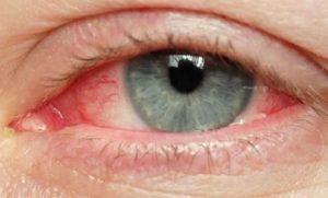 Возможный вред глазам