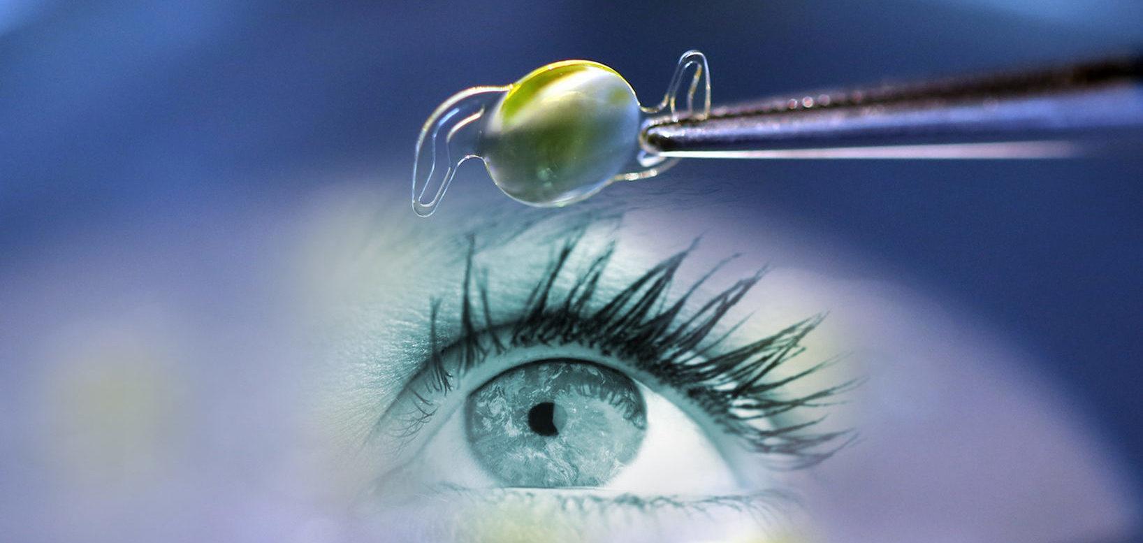 Что это факичная ИОЛ - эффективность имплантации
