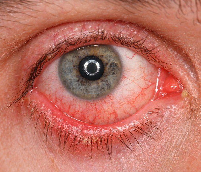 Покраснение глаз после линз