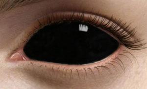 Использование склеральных контактных линз