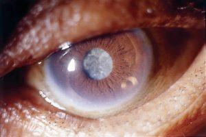 Капли от катаракты - какие лучше выбрать