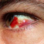 Капли для глаз, если лопнул сосуд в глазу - укрепление сосудистых стенок