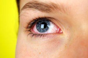 Симптомы усталости и напряжения глаз