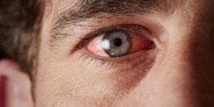 Почему сварка так опасна для глаз и зрения