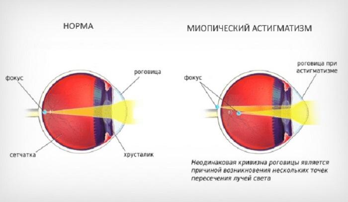 Что такое миопический астигматизм - причины и лечение