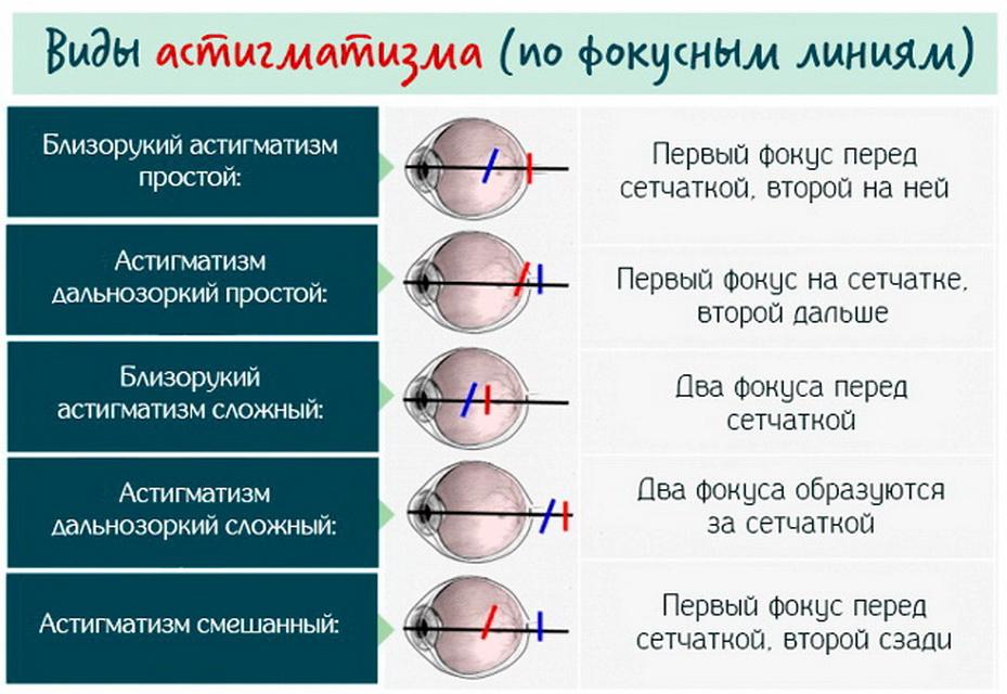 Что такое сложный астигматизм