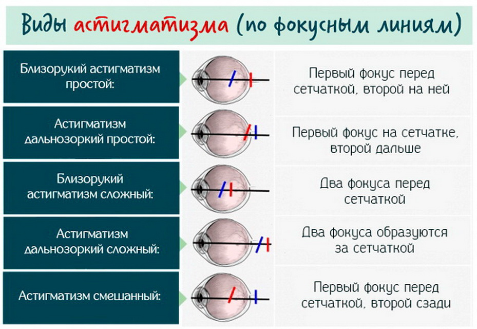 Что такое гиперметропический астигматизм - сложный и простой