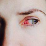 Сухость глаз от контактных линз