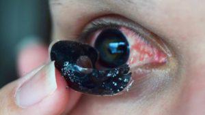 Что делать при разрыве контактной линзы