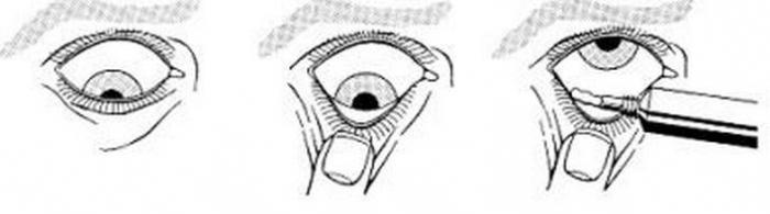 Левомицетиновая глазная мазь