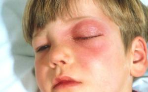 Что такое флегмона глазницы