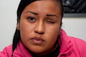 Дают ли инвалидность за отсутствие одного глаза