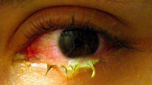 Почему гноятся глаза у взрослого