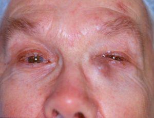 Закупорка слезного канала - причины и лечение