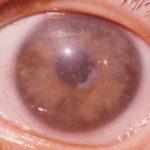 глаза мутные