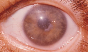 Почему глаза мутные