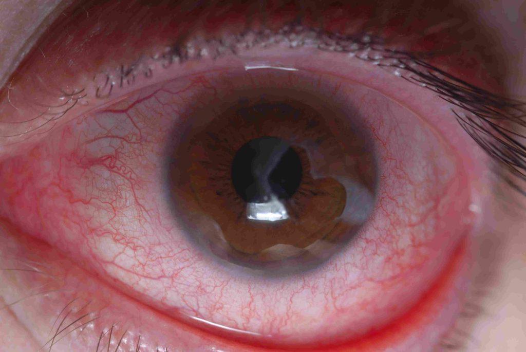симпатическая офтальмия фото все эти желания