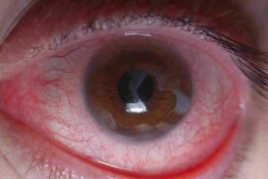 Чем лечить ожог роговицы глаза