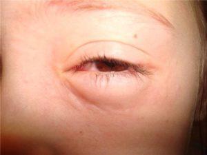 Как снять аллергический отек с глаз - что делать