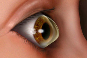 Лазерная коррекция зрения - осложнения и последствия