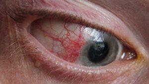 Почему белки глаз красные