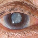 Причины глаукомы у пожилых
