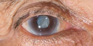 Слепота - полное отсутствие зрения