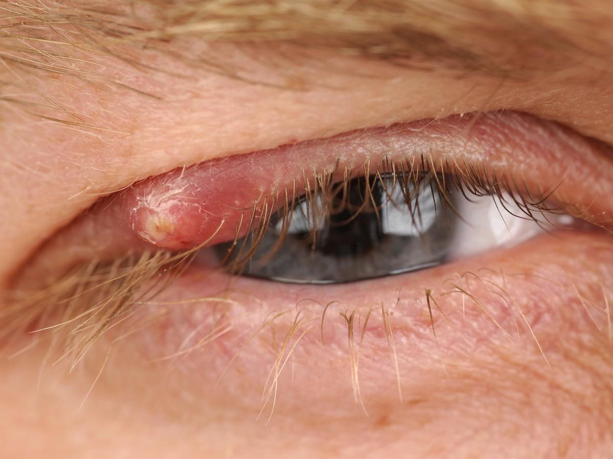 Фото картинок с ячменем в глазах