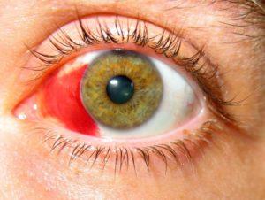 Как лечить кровоизлияние в глазу