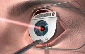 Как исправить и улучшить зрение при миопии (близорукости)