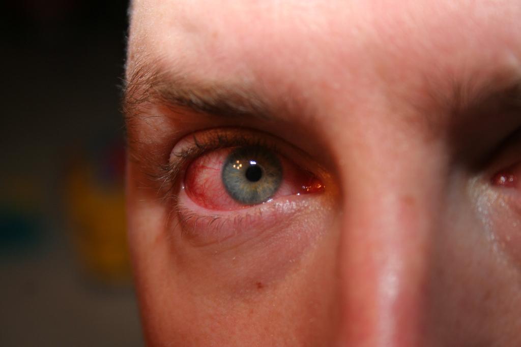 как лечить при поражении хламидиями глаз