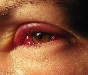 Почему глаз опух, покраснел и гноится
