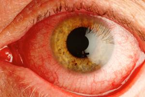 Список заболеваний глаз у человека - описание симптомов