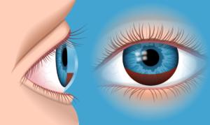 Гифема или кровоизлияние в переднюю камеру глаза