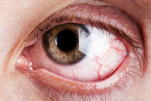 Фотоофтальмия или световая офтальмия