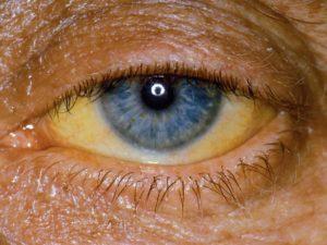 Почему глаза становятся желтыми