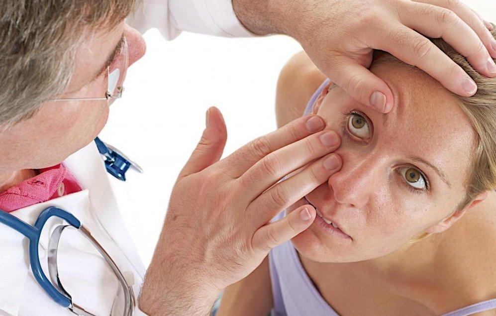Что такое склерит глаза