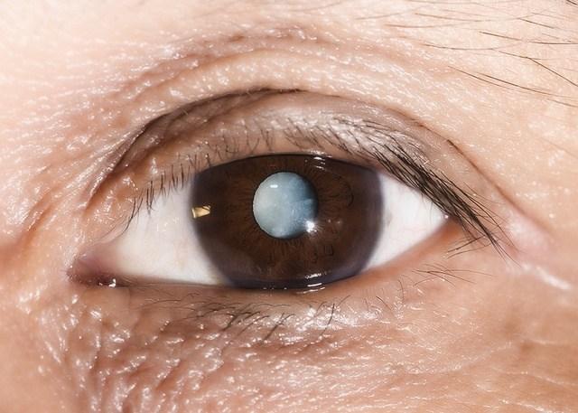 Белая точка в глазу