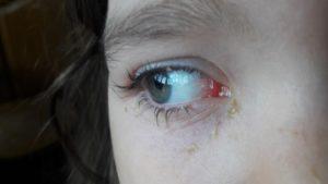 Гноятся глаза при простуде у взрослых и детей