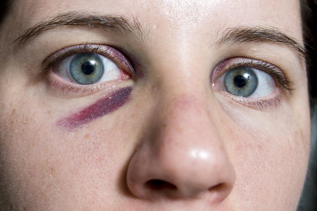 Как долго проходит синяк под глазом - через какое время он исчезает