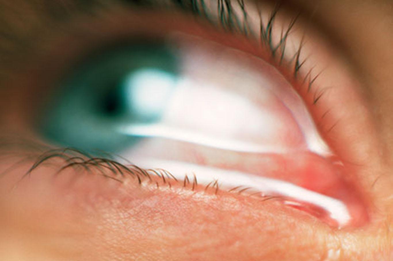 услугам картинка от которой слезятся глаза смайлик состоит