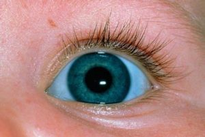 Почему белки глаз голубые