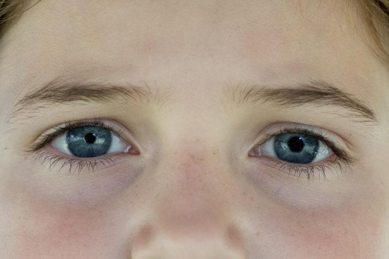 для почему на фото один глаз больше другого зрителей можно слышать