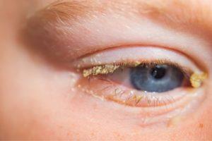 Почему закисают глаза у взрослого