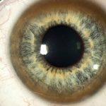 Кератопатия роговицы глаза