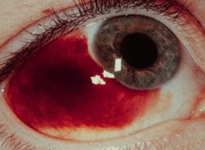 Красный глаз после удара