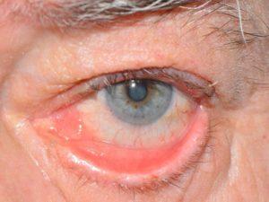 Воспаление глаза покраснение лечение в домашних условиях
