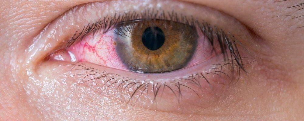 Грибок глаз